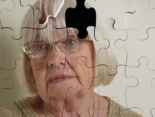 alzheimer-terapie